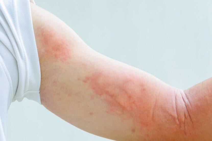 Lamotrigina: usos y efectos secundarios