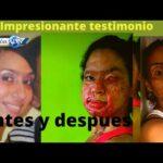 VIDEO: LA IMPACTANTE HISTORIA DE MARIA ISABEL; OTRA VICTIMA DEL ÁCIDO hace llamado a Raquel Arbaje