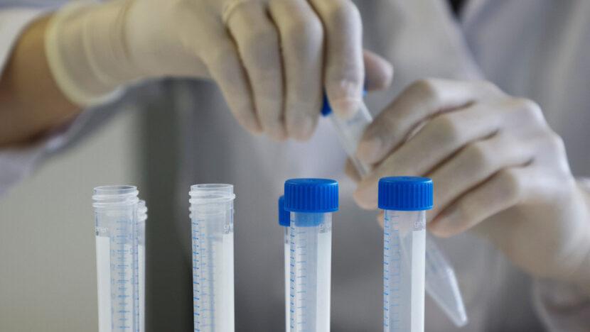 Científicos rusos hallan anticuerpos contra el covid-19 mucho