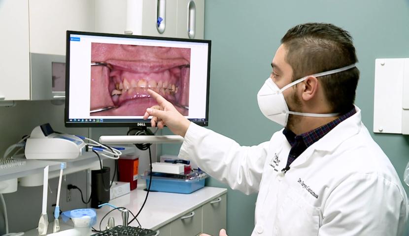 El estrés relacionado con la pandemia causa un aumento en el rechinamiento de los dientes, dicen los dentistas