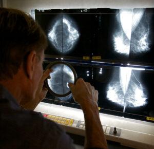 La vacuna Covid-19 causa inflamación detectada en mamografías