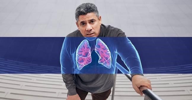 Moderno tratamiento biolgico mejora la calidad de vida de pacientes con enfermedades inflamatorias tipo 2