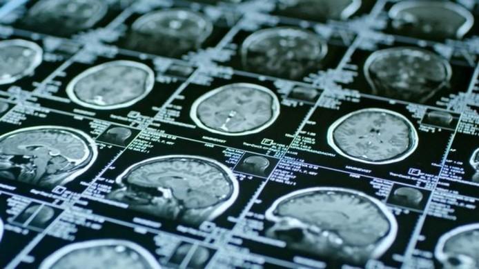 Los casos leves de COVID-19 también podrían acelerar el envejecimiento cerebral
